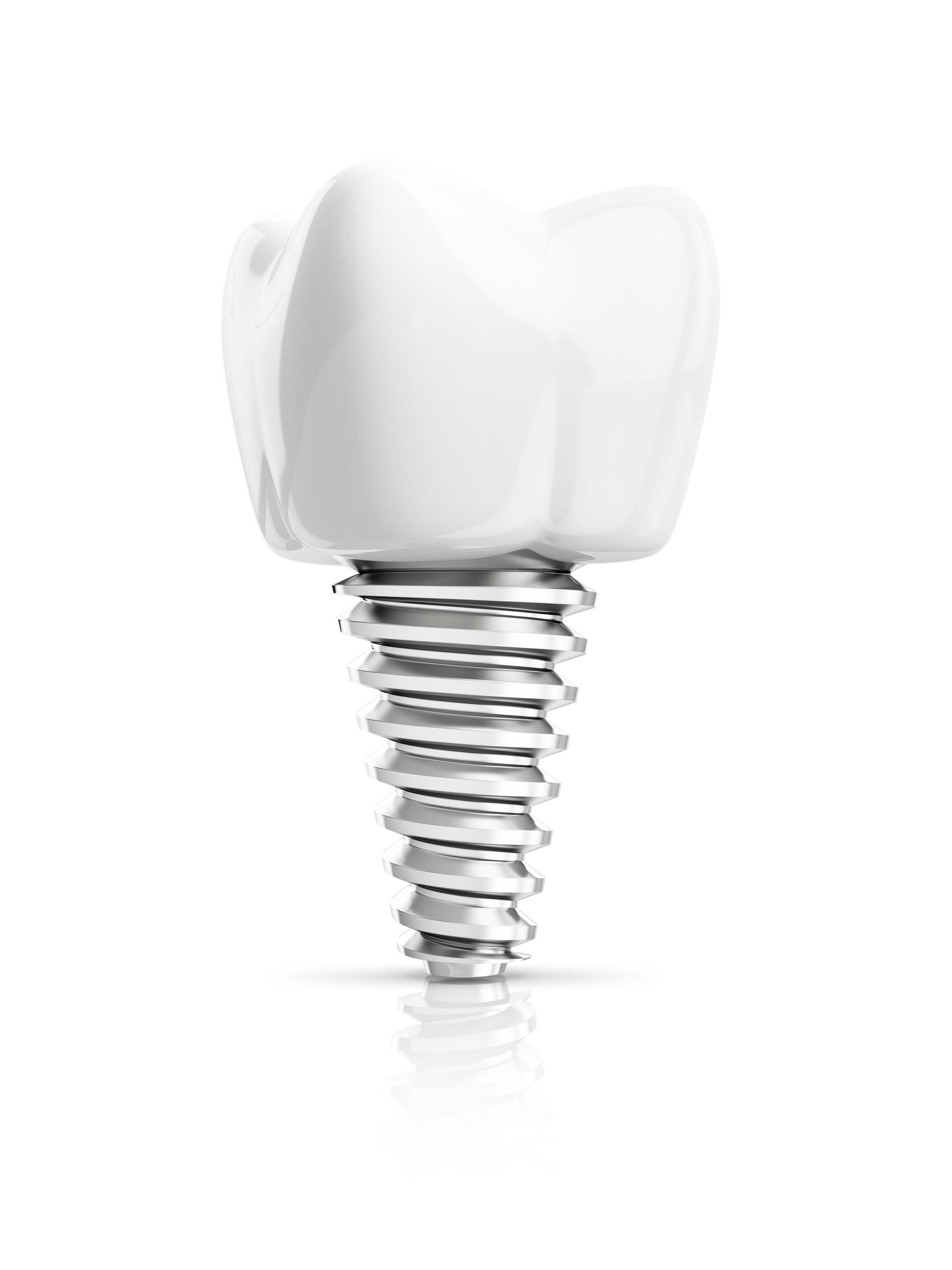 Galitsis and Bovino - Dental Implant